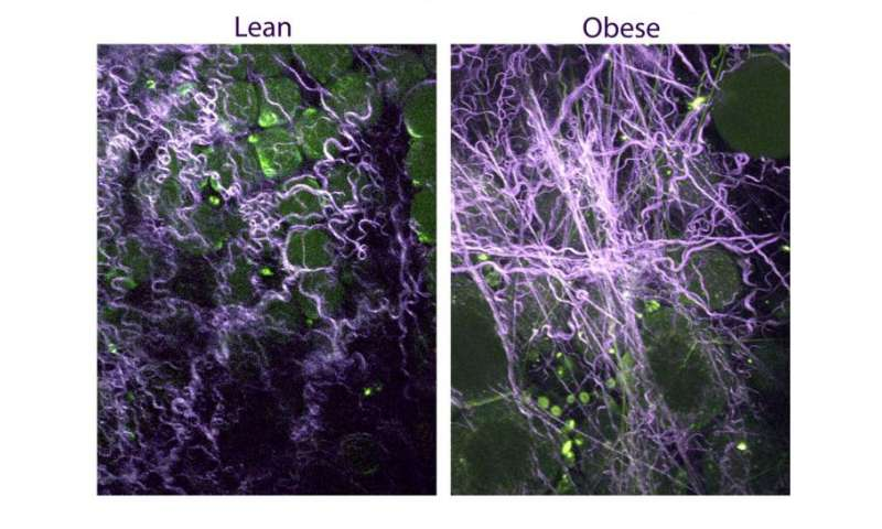 Stiffer breast tissue in obese women promotes tumors