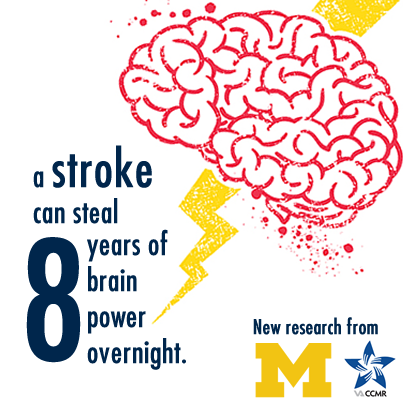 Strokes steal 8 years' worth of brain function, new study suggests