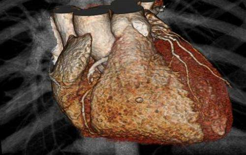 Study calls heart imaging into question for mild chest pain