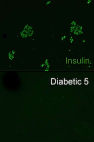 Study describes underlying cause of diabetes in dogs