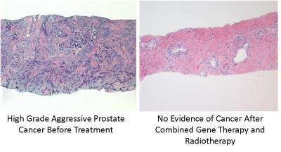 Suicide gene therapy kills prostate tumor cells