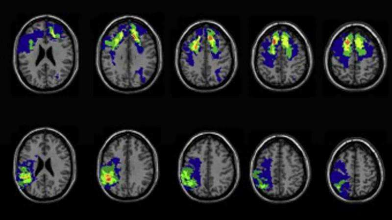 Suppression of the brain's inhibitory functions can result in openness to mystical experiences
