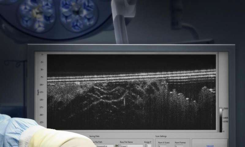 Surgical probe seeks out where cancer ends and healthy tissue begins
