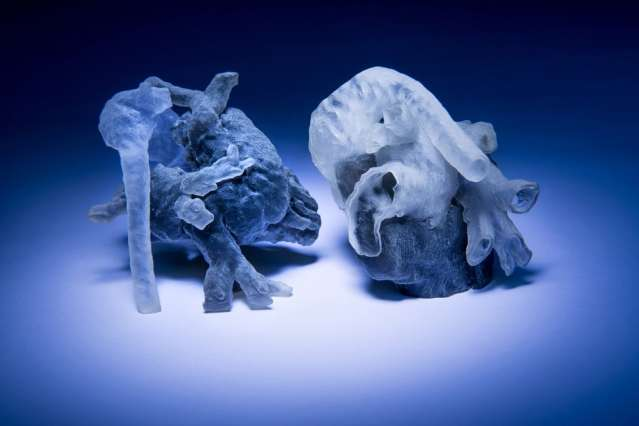 System can convert MRI heart scans into 3D-printed, physical models in a few hours
