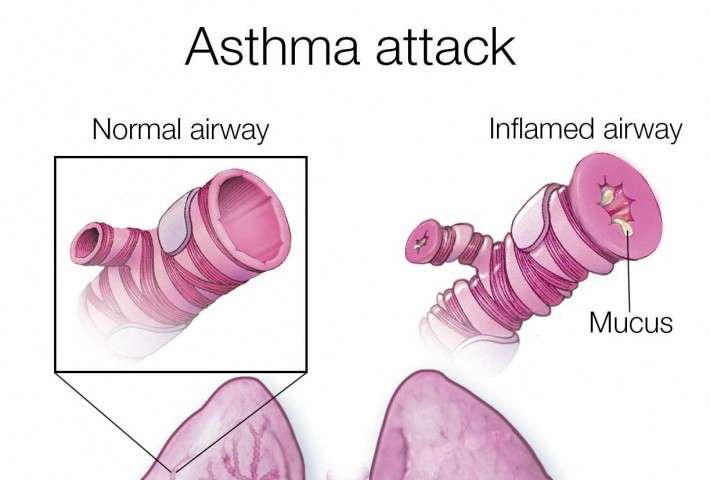 Taking less asthma medicine can be done safely with guidance Mayo Clinic study says