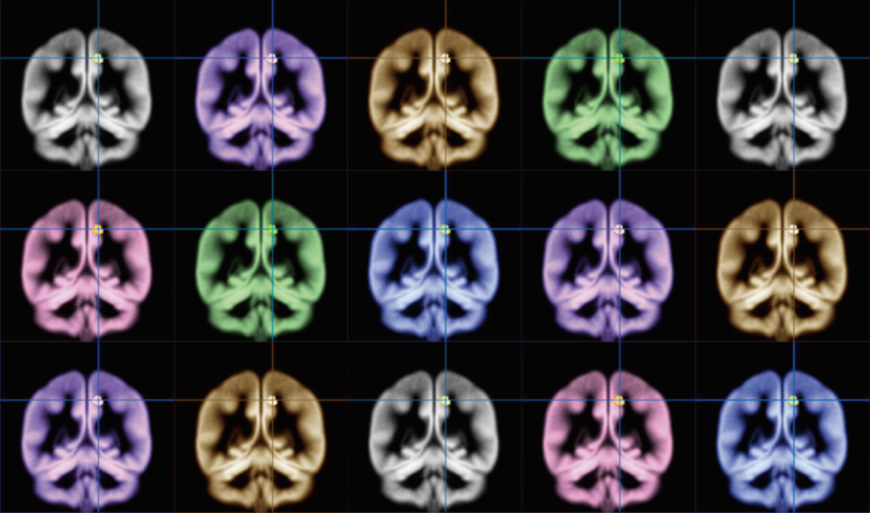 The search for happiness: Using MRI to find where happiness happens