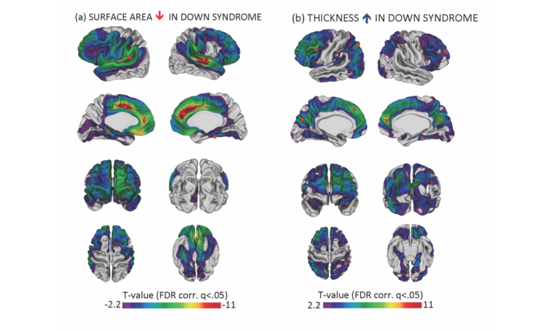 Thick cortex could be key in Down syndrome