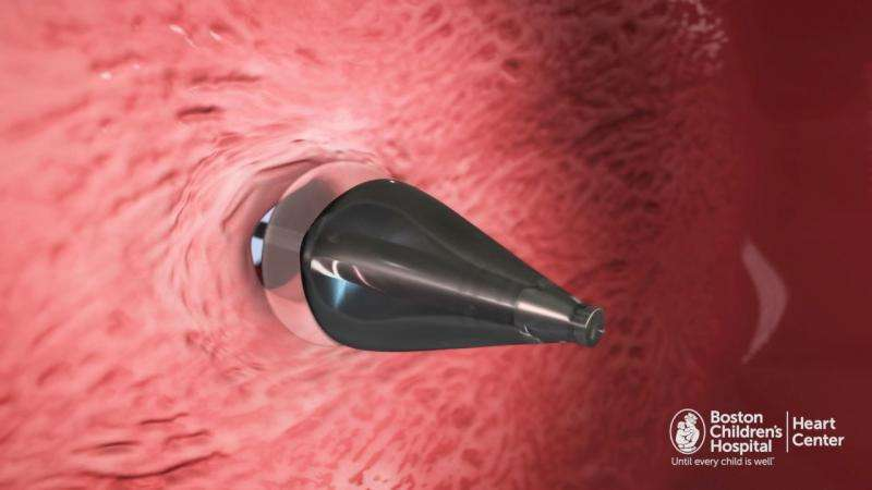 UV-light enabled catheter fixes holes in the heart without invasive surgery