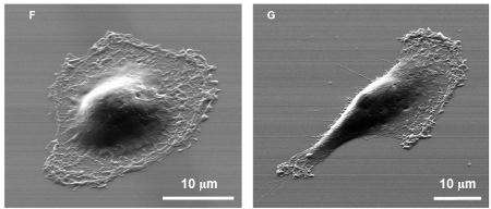 What makes cancer cells spread? New device offers clues