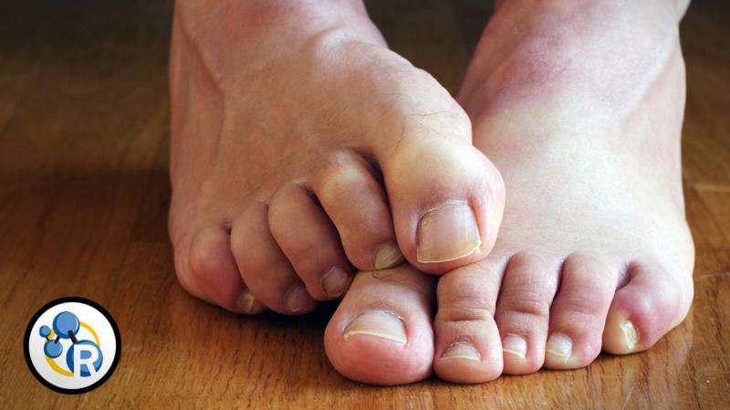 Why do feet stink? (video)