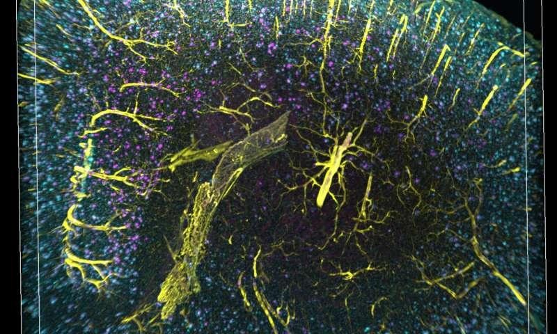3-D imaging reveals unexpected arrangement of plaques in Alzheimer's-afflicted brains