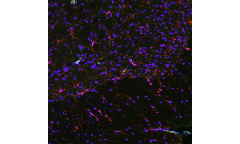 Cells carry 'memory' of injury, which could reveal why chronic pain persists