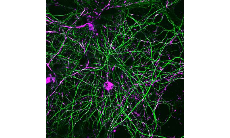 Discovery may lead to a treatment to slow Parkinson's disease