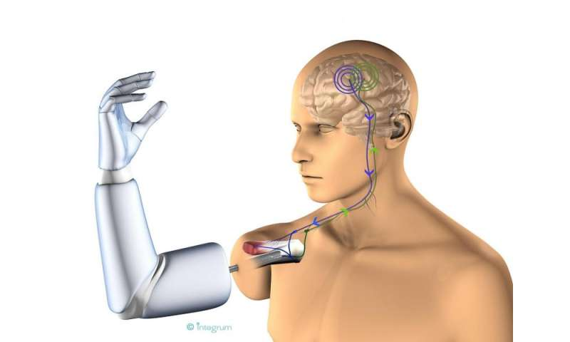 First prosthesis with direct connection to bone, nerves and muscles