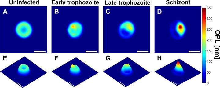 Holographic imaging and deep learning diagnose malaria