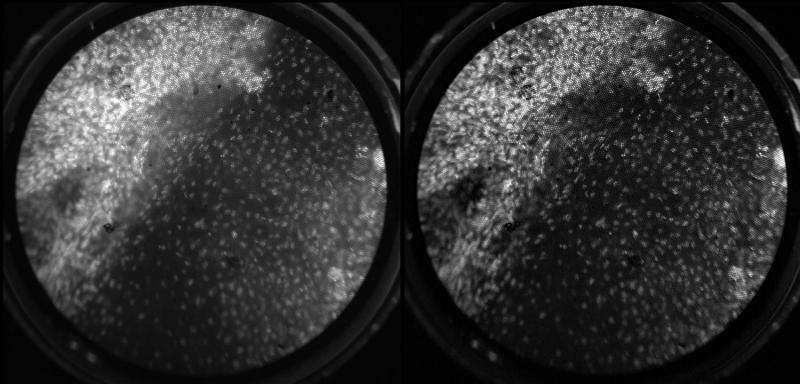 Improved microendoscope brings cervical cancer into focus