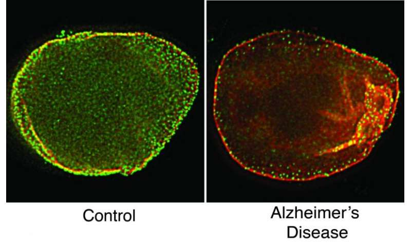 Mesh-like scaffold is disordered in Alzheimer's-affected cells