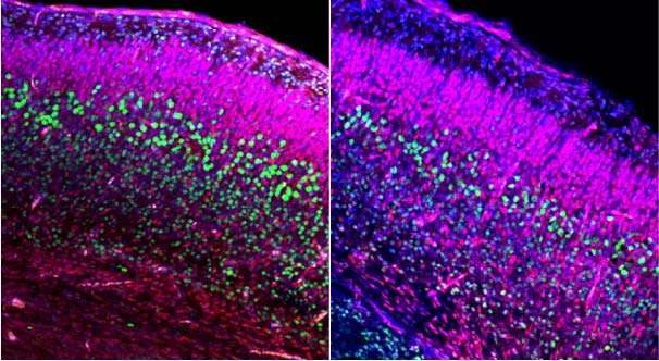 Newly identified pathway links fetal brain development to adult social behavior