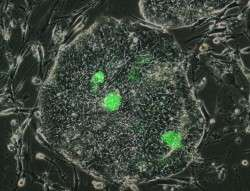 New method for detecting and preserving human stem cells in the lab