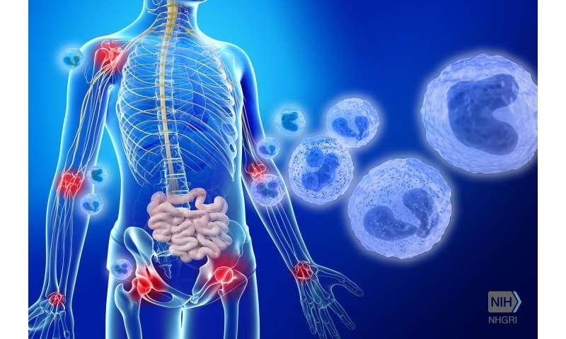 NIH researchers discover otulipenia, a new inflammatory disease