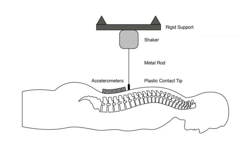 Seismic for the spine: Vibration technology offers alternative to MRI
