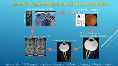 Study finds cause of visual impairment in astronauts