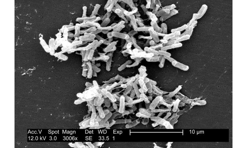 Study tracing ancestor microorganisms suggests life started in a hydrothermal environment