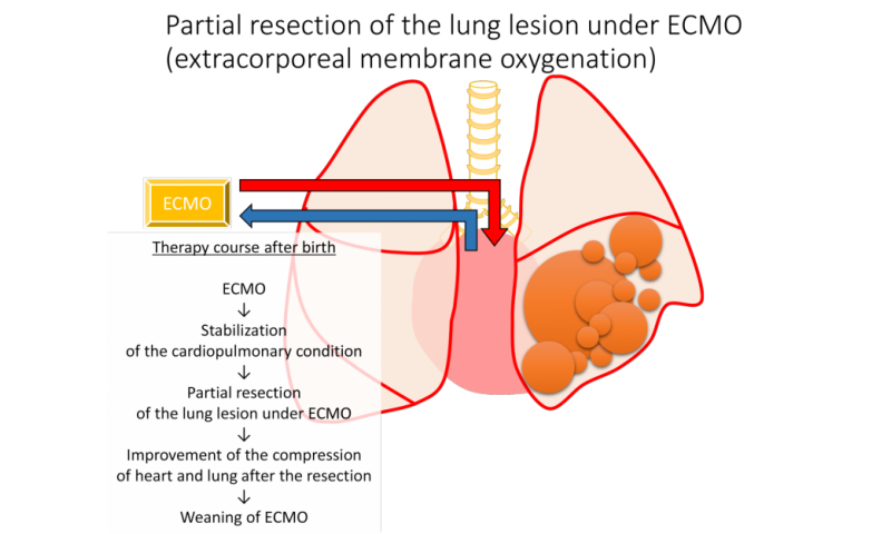 Successful treatment for a severe case of fetal lung disorder CPAM