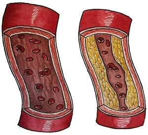 Telomere length in circulating blood cells does not predict asymptomatic atherosclerosis