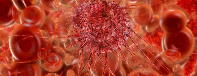 New insights into blood cancer that develops before birth