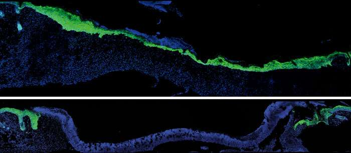 New research clarifies why wounds heal more slowly with age