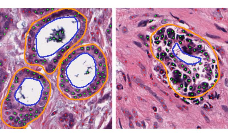 Computerized tissue image analysis reveals underlying genomics of ER+ breast cancer