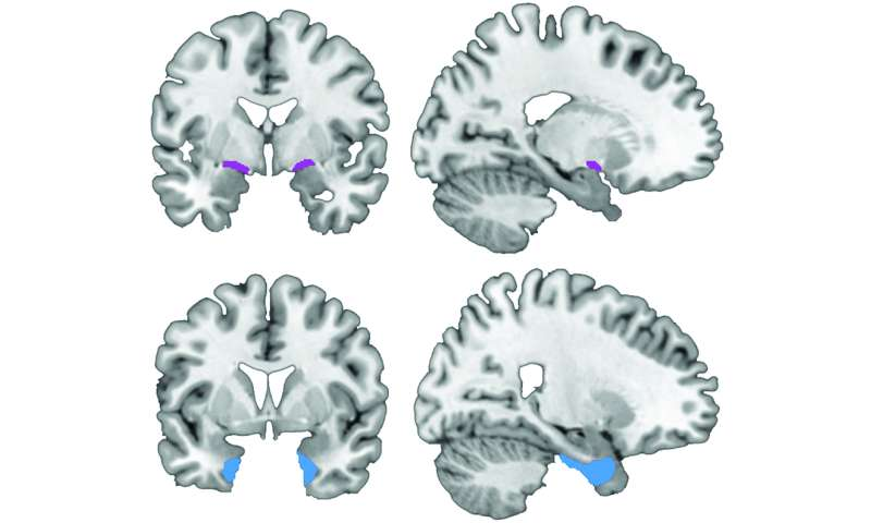 Study challenges model of Alzheimer's disease progression