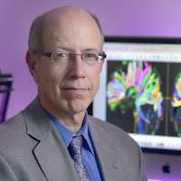 UTSW researchers find higher risk of mild cognitive impairment after traumatic brain injury