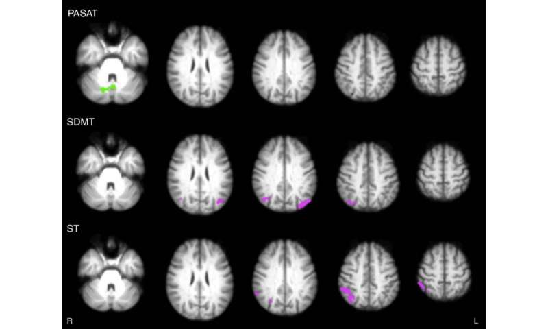 Video games improve brain connections in multiple sclerosis patients