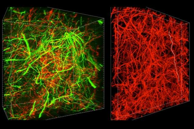 New technique can reveal subcellular brain details and long-range connections