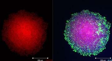 Breakthrough in brain tumour research