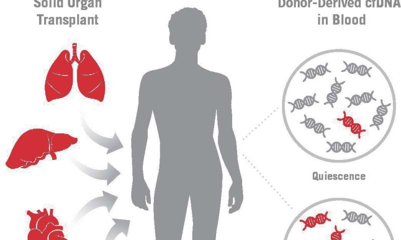 New non-invasive assay may improve surveillance of heart and other solid-organ transplants
