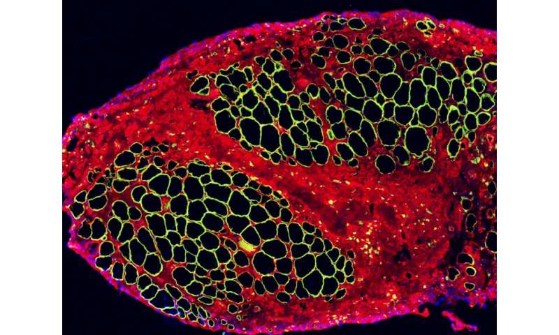 Regenerating muscle from stem cells