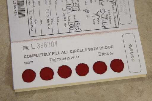 Storing babies' blood samples pits privacy versus science