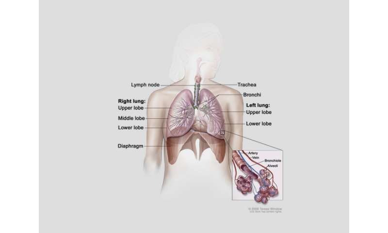 Study identifies possible marker for lung cancer chemotherapy