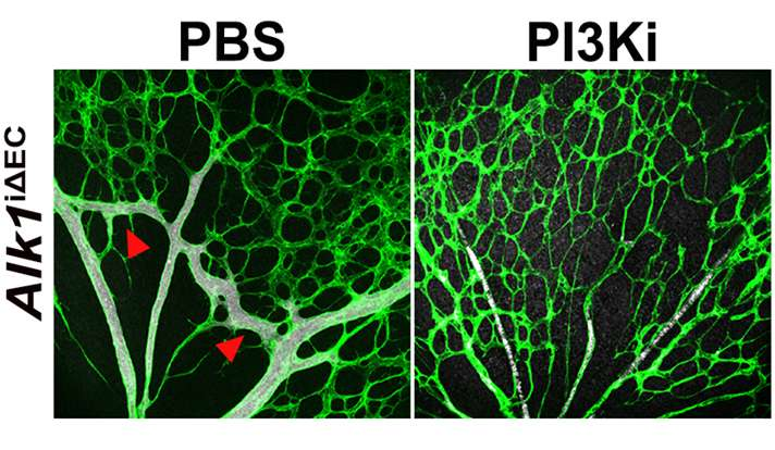 Study points to possible treatment for a rare vascular disease