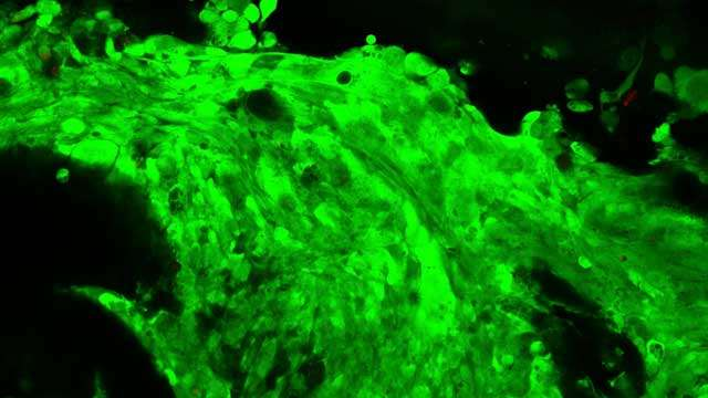 3D printing brain tumours to improve treatment