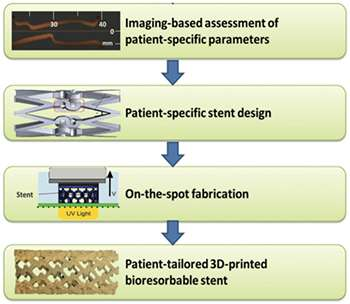 3-D printing customized vascular stents