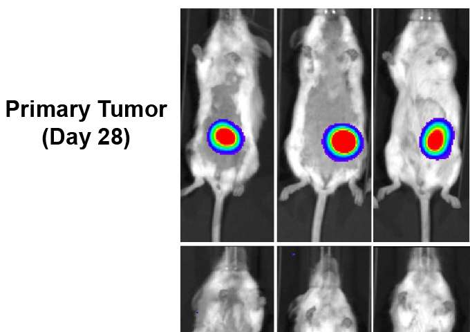 Discovery of new ovarian cancer signaling hub points to target for limiting metastasis
