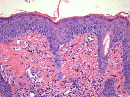 Immune system's 'workaround' may explain heart disease in psoriasis patients