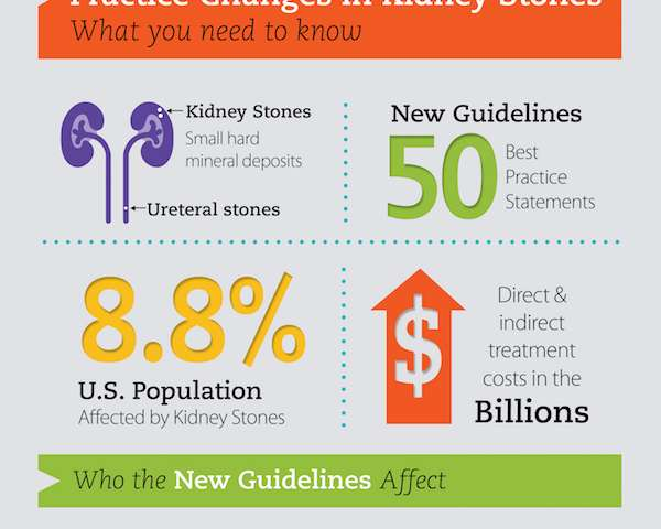 New guidelines published for physicians treating patients with kidney stones