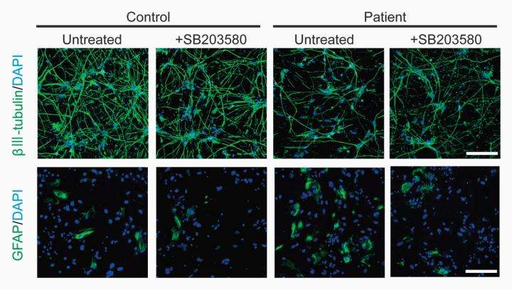 Schizophrenic stem cells do not differentiate properly into neurons