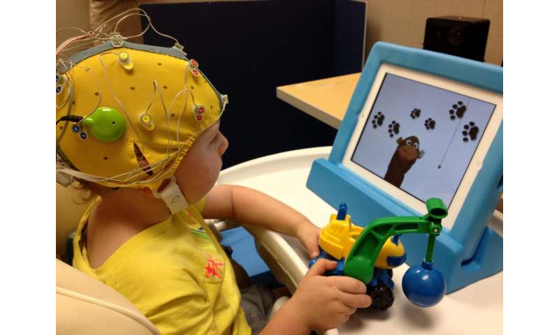 Researchers study how cochlear implants affect brain circuits