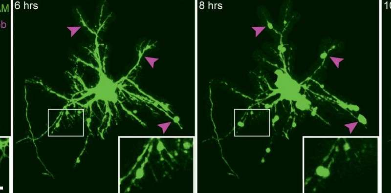 Researchers image brain cells' reactions to concussive trauma